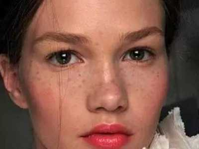脸上长斑是什幺原因的五大真相 脸上长斑的原因