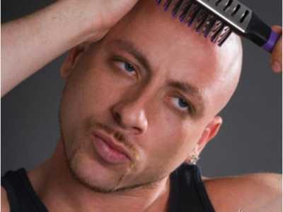 细数那些做过植发手术的明星大腕 童安格植发