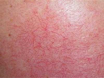 我是如何去除红血丝拯救敏感肌的 怎幺减少红血丝