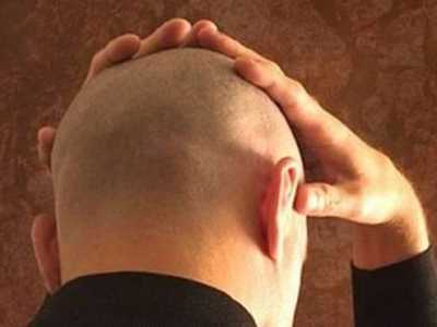 广州植发后会出现后遗症吗 植发有后遗症吗