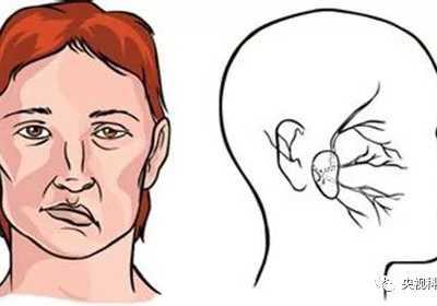 健康之路2017年12月18日 脑部运动神经异常兴奋面肌紧张