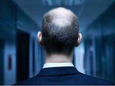 北京毛囊移植手术可以改善脱发吗 运动员为何容易秃顶