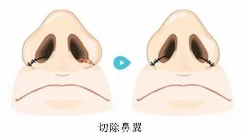 如何正确缩鼻翼 鼻翼宽