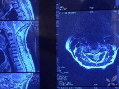 颈椎病鉴别 究竟是颈椎病还是渐冻症