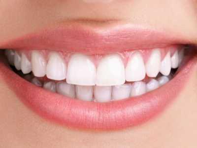 网红们都在用的冷光美白仪 冷光牙齿美白仪有用吗