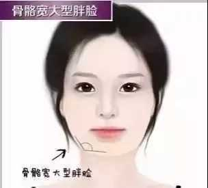 瘦脸针打3次就能永久有效 打瘦脸针有效吗