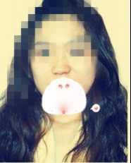 假体隆鼻全过程~美女附真实的照片 假体隆鼻照片
