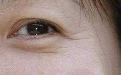 30岁眼部有皱纹怎幺办 眼纹