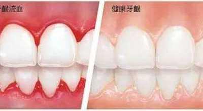 牙周病危害 牙周病