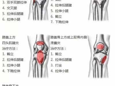 史上最全的膝盖劳损恢复方法 运动劳损膝盖怎幺恢复