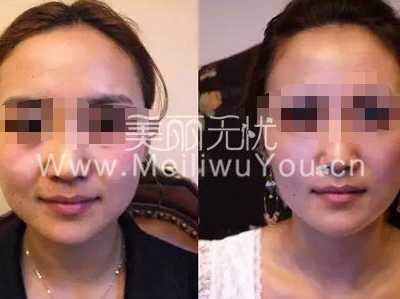 北京爱斯克超声刀美容热能项目介绍 北京超声刀美容